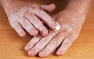 Как лечить витилиго с помощью мазей и крема
