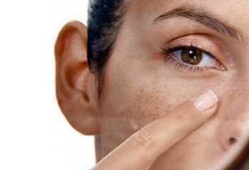 Все, что нужно знать о лечении витилиго
